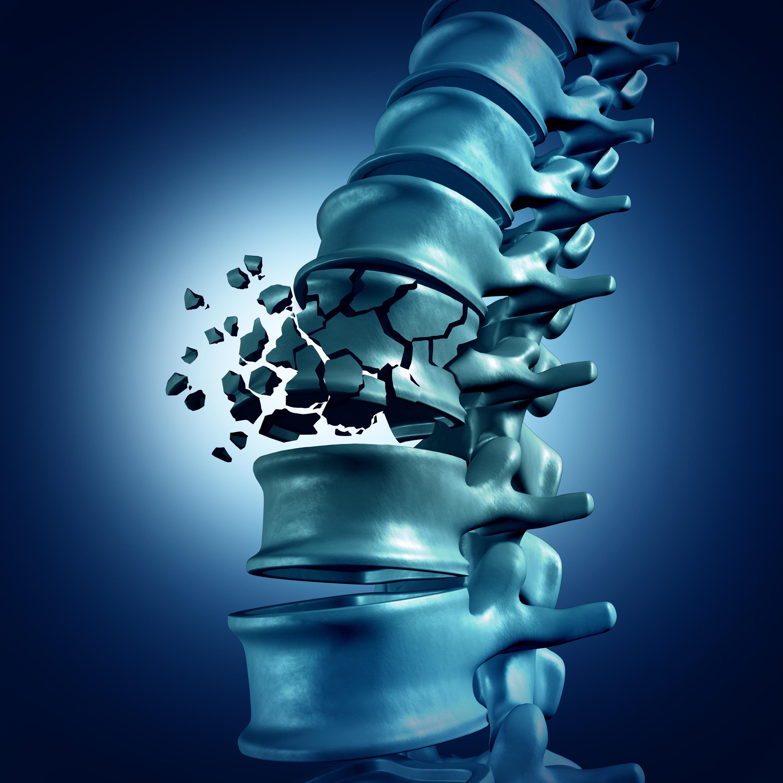 закрепляем остеопороз позвоночника картинки относительно