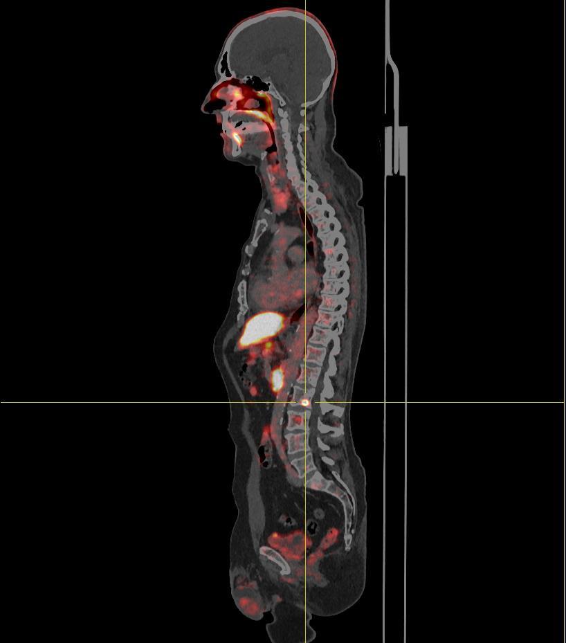 pet-ct beim prostatakarzinom